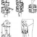 Переломы бедренной кости (окончательная репозиция при ротационных смещениях костных отломков)