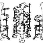 Переломы плечевой кости (порядок проведения проксимальных спиц)