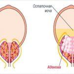 Диета при аденоме предстательной железы