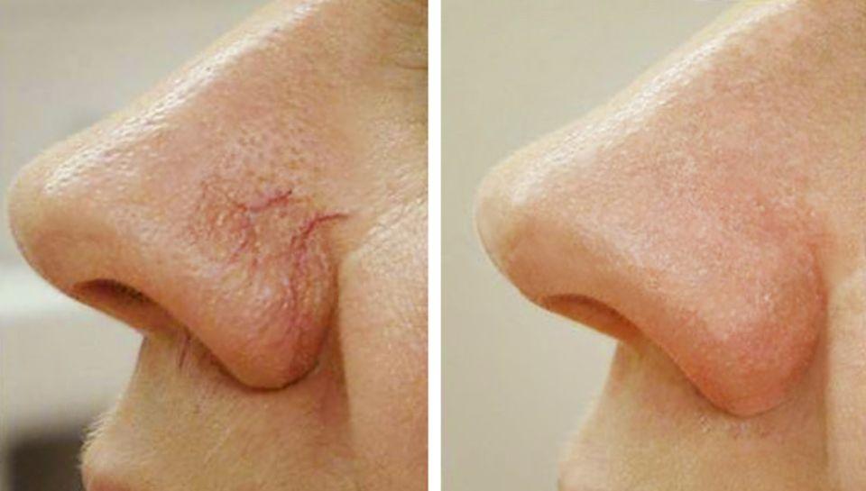 Что вызывает повреждение кровеносных сосудов на лице?