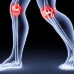 Артрозы и артриты – разница и причины появления