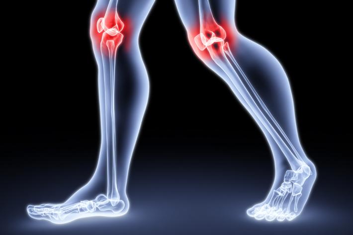 Артрозы и артриты - разница и причины появления