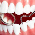 Лечение стоматологических болезней у челюстно-лицевого хирурга