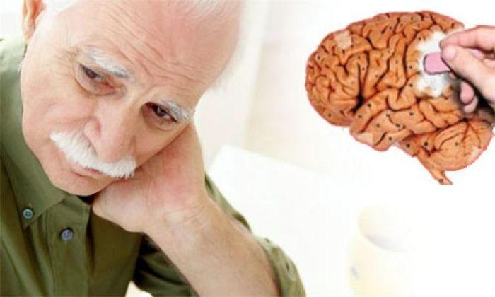 Болезнь Альцгеймера: исследователи создают модель для прогнозирования снижения
