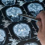 Какие бывают виды опухолей?