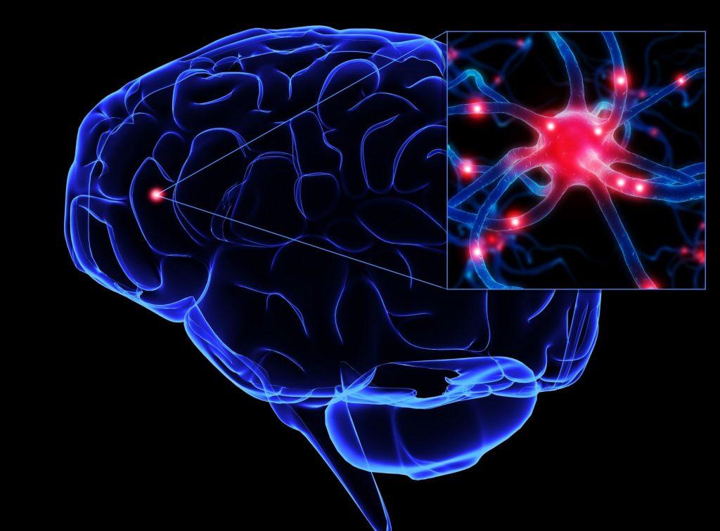 Все о функциональном неврологическом расстройстве