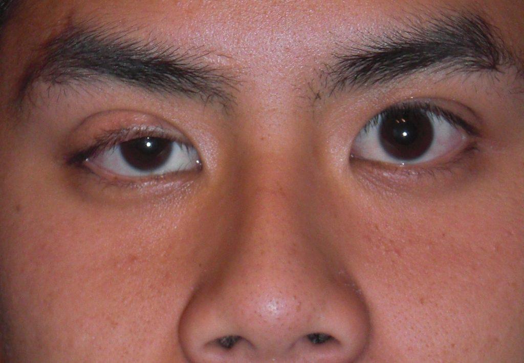 Обвисшее веко или птоз причины симптомы профилактика и лечение