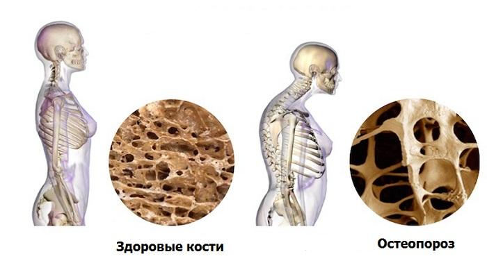 Остеопороз: как не допустить перелом