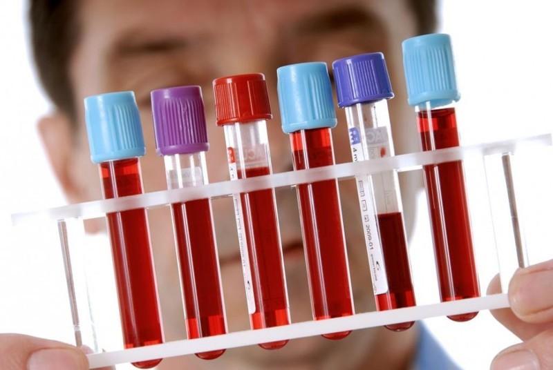 Рак толстой кишки: изменения в кишечных бактериях могут привести к новому анализу крови