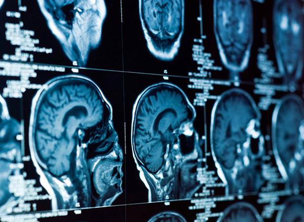 Что вызывает болезнь Альцгеймера? Новое токсичное исследование предполагает не токсичный амилоид