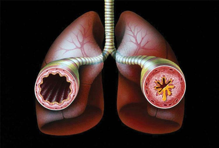 Что нужно знать о внутренней и внешней астме