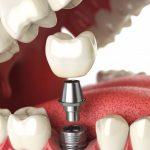 Имплантация зубов в Бутово и Подольске