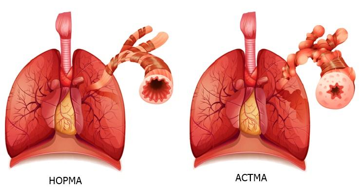 Каковы признаки того, что у вас может быть астма?