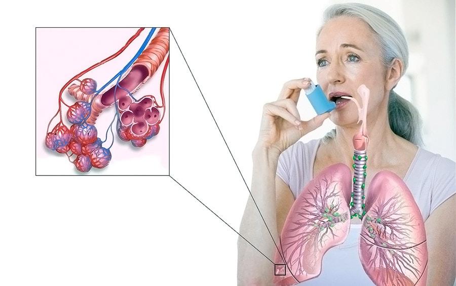 Что нужно знать о астме у взрослых?