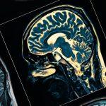 Ученые отслеживают путь Паркинсона от кишки к мозгу у мышей