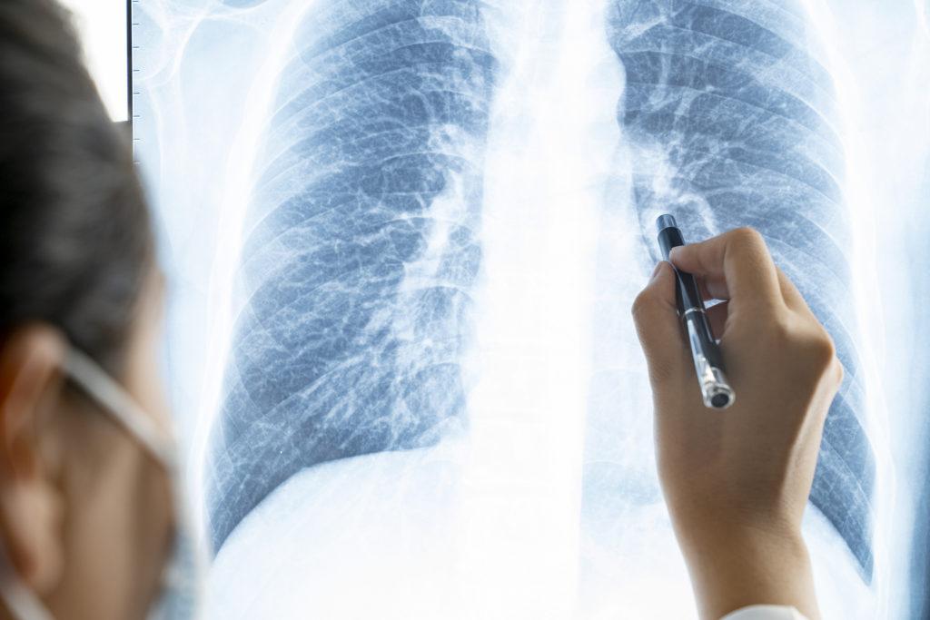 У курящих людей может быть больше рецепторов к новому коронавирусу