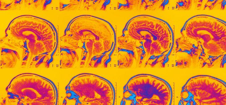 Ориентация на раннее воспаление головного мозга может замедлить болезнь Альцгеймера