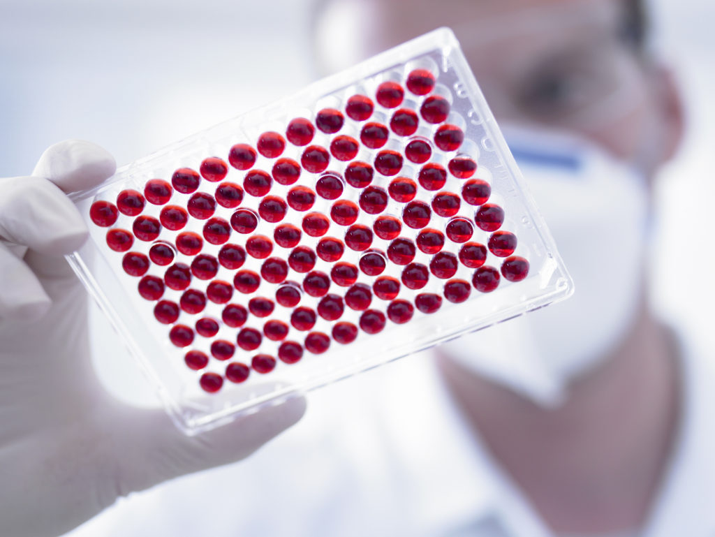 Болезнь Альцгеймера: медный транспорт в крови обеспечивает новые подсказки